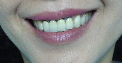 Độ bền của răng sứ thẩm mỹ được khoảng bao lâu? 1