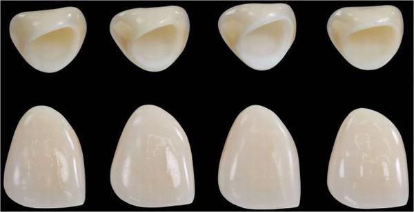 Giá răng sứ thẩm mỹ 2