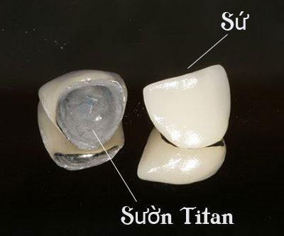 Giá răng sứ Titan