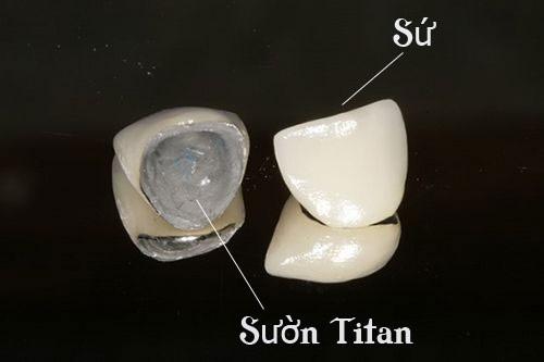 Giá răng sứ Titan 1