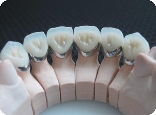 Giá răng sứ Titan 2