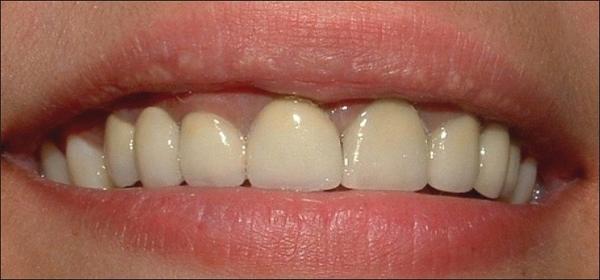 Giá răng sứ Titan 3