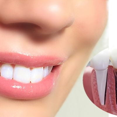 Làm răng sứ ở đâu tốt?