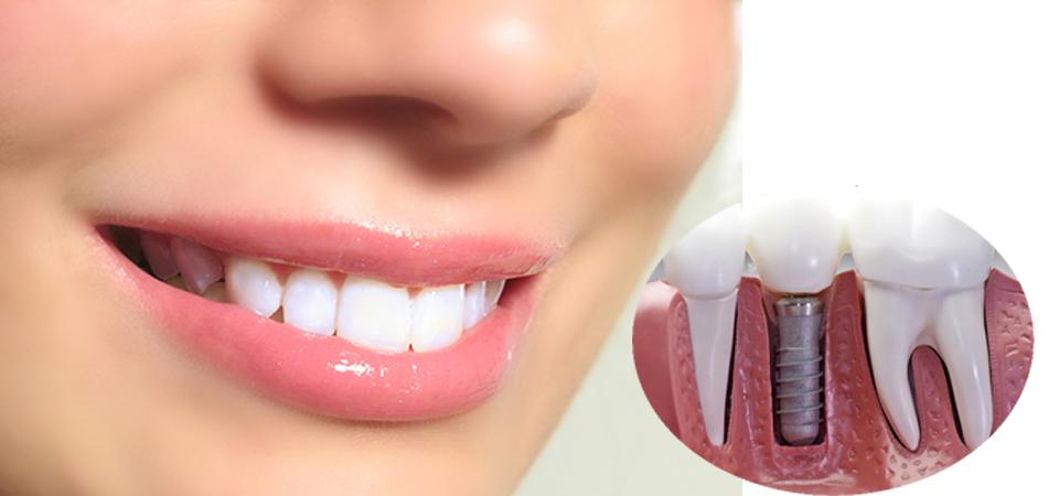 Làm răng sứ ở đâu tốt? 1