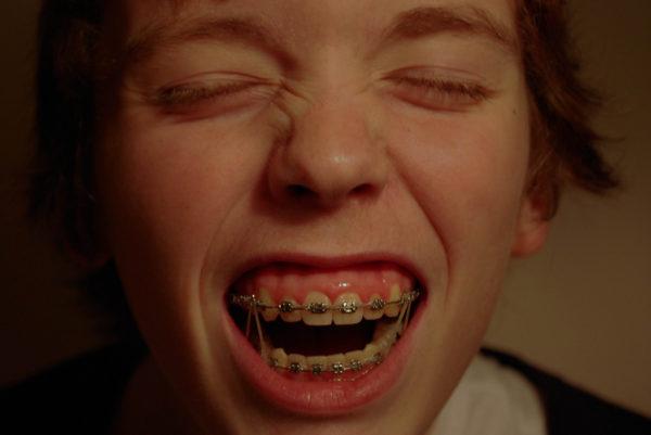 lưu ý khi niềng răng cho trẻ em