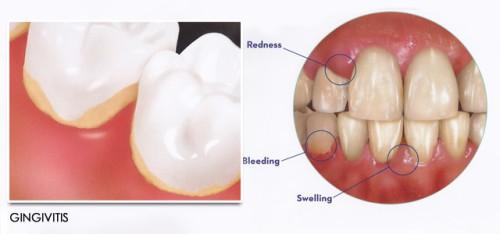 Mẹo chữa viêm chân răng hiệu quả tại nhà 1