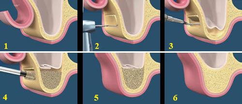 Khi nào cần nâng xoang hàm khi cấy ghép Implant?