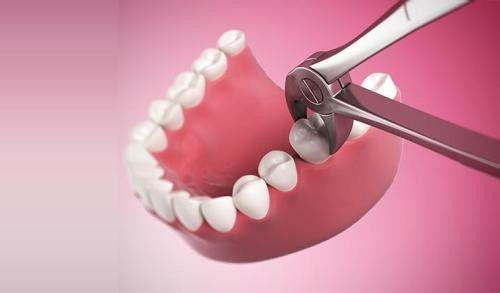 Nhổ răng hàm không đau 1