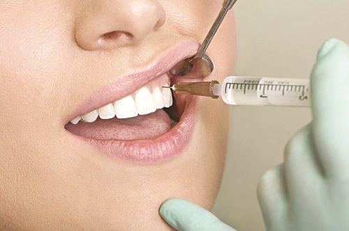 Nhổ răng hàm không đau 2