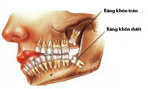 Nhổ răng khôn đau mấy ngày? 1