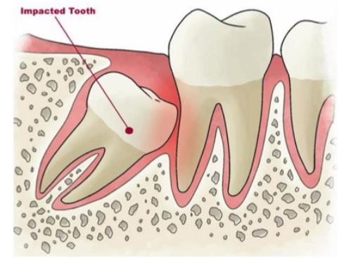 Phương pháp nhổ răng khôn không đau 2