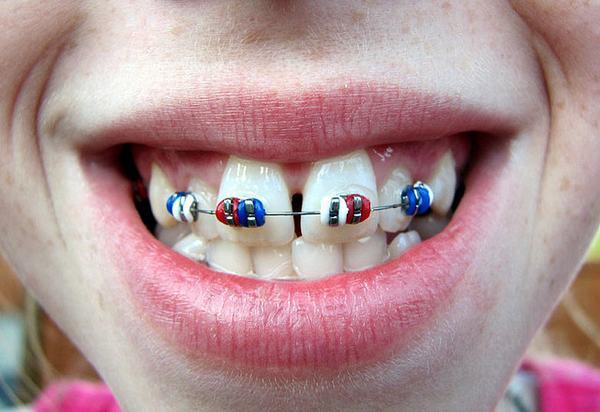 Niềng 4 răng cửa có được không?