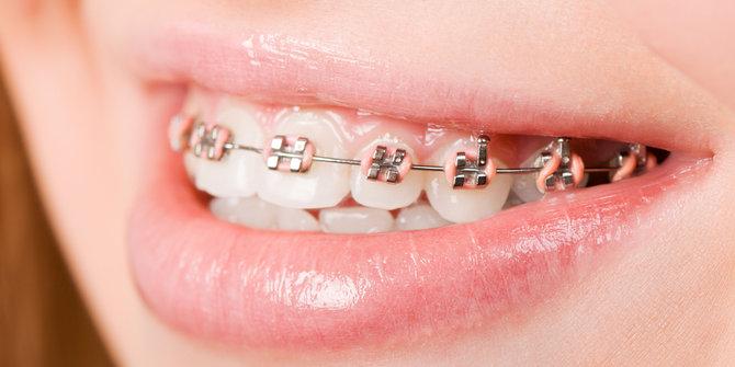 Niềng 4 răng cửa bao nhiêu tiền?