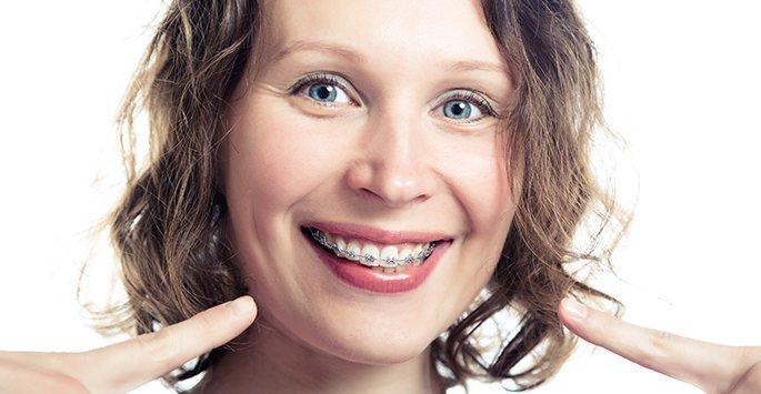 Niềng răng cho người lớn an toàn và hiệu quả