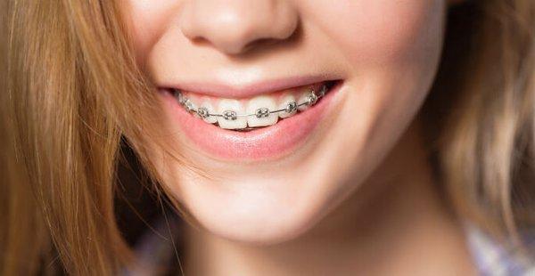 Niềng răng cho trẻ có nguy hiểm không?