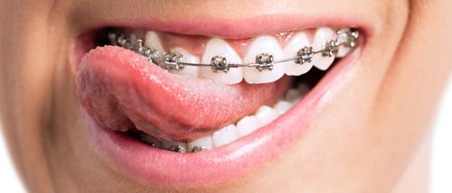 Niềng răng có ảnh hưởng gì không?