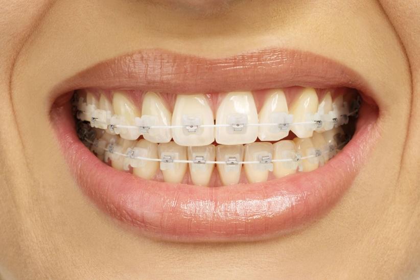 Niềng răng hô hàm trên an toàn và hiệu quả