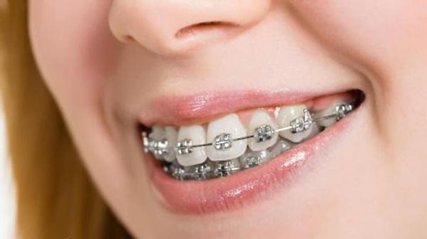 Niềng răng hô mất bao lâu thì có kết quả?