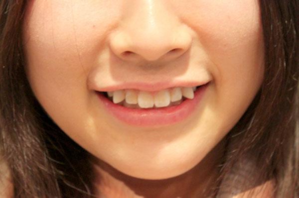 Niềng răng khểnh có cần thiết hay không?