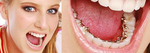 Niềng răng mặt trong có ưu điểm gì?