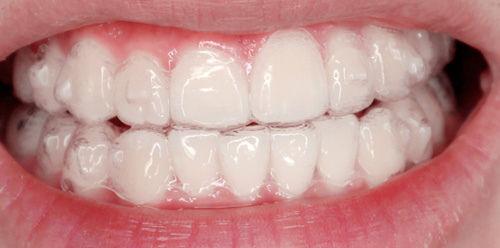 Niềng răng móm ở đâu đẹp?