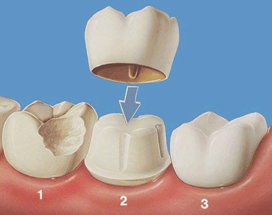Thử mão răng sứ - Bước quan trọng trong quy trình bọc răng sứ