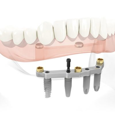 quy-trinh-cay-ghep-rang-implant-2