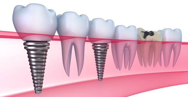 quy-trinh-cay-ghep-rang-implant-3