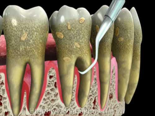 Quy trình lấy cao răng bằng máy siêu âm 2