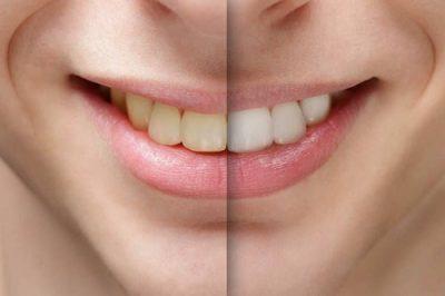 Quy trình lấy cao răng bằng máy siêu âm 3