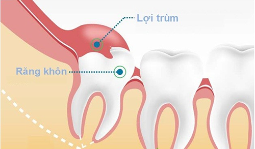 Răng khôn bao giờ mọc? 2