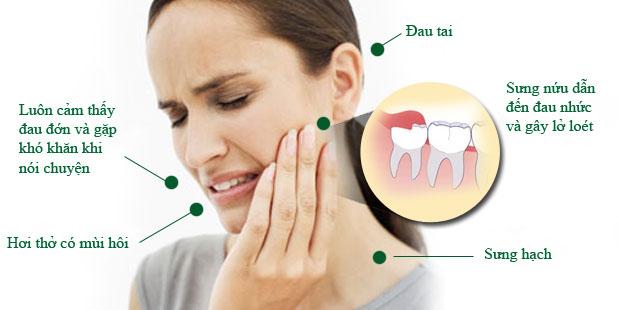 Răng khôn bị lung lay phải làm sao? 1
