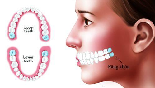 Răng khôn có mấy cái? 1