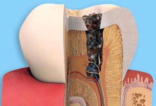Răng đã lấy tuỷ có nên bọc sứ không?