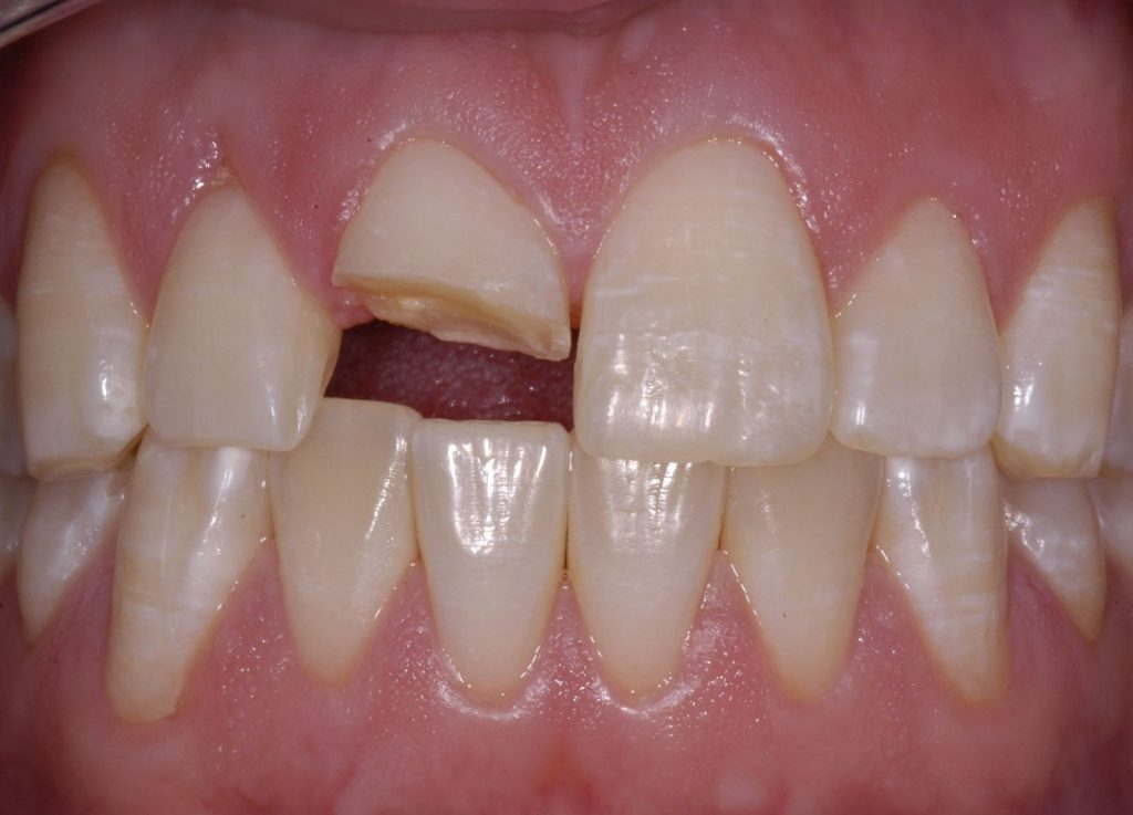 Răng sứ bị mẻ vỡ phải làm sao? 1