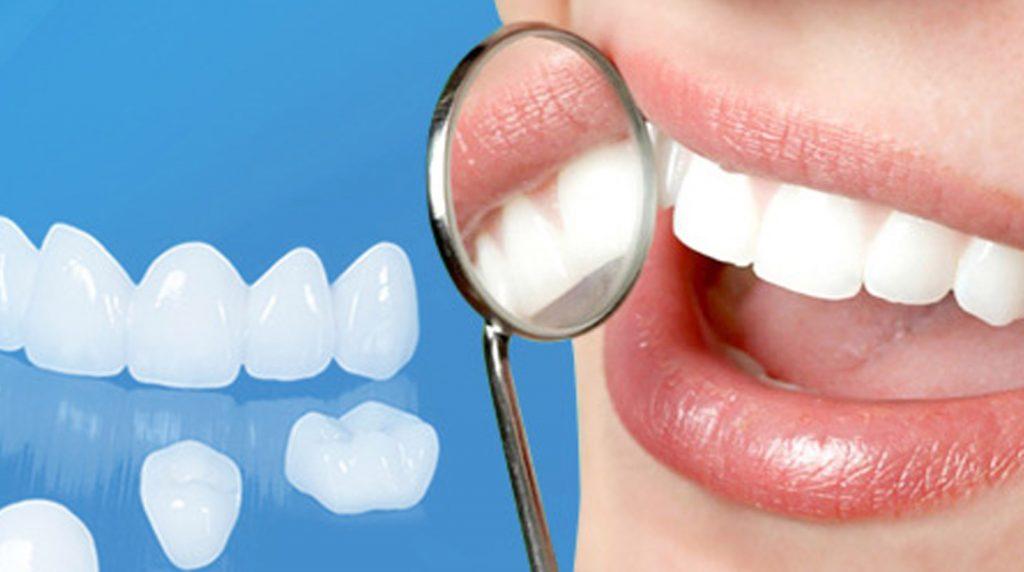 Răng sứ bị mẻ vỡ phải làm sao? 2