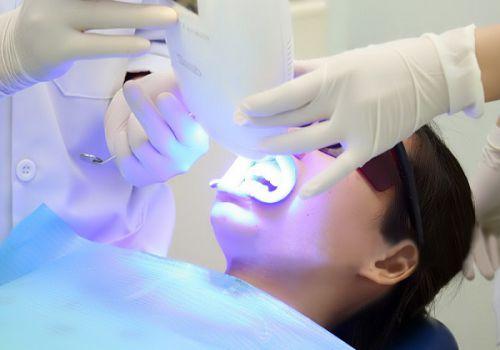 Răng sứ có tẩy trắng được không? 2