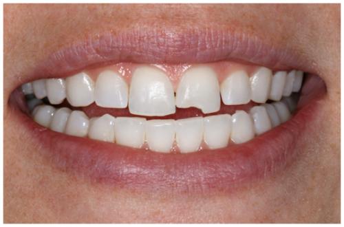 Răng sứ không kim loại 1