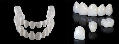 Răng sứ không kim loại 2