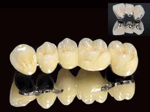 Răng sứ kim loại có tốt không? 1