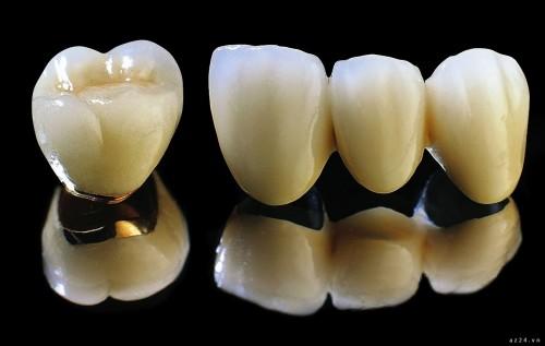 Răng sứ kim loại thường có tốt không? 2
