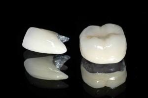 Răng sứ Titan có tốt không? 2