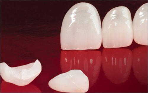 Răng sứ toàn sứ 1
