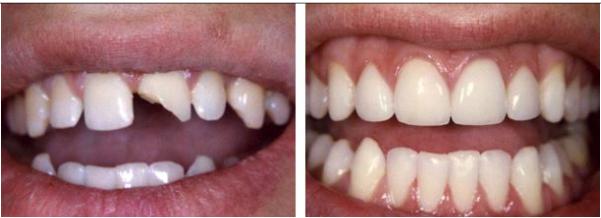 Răng sứ toàn sứ 2