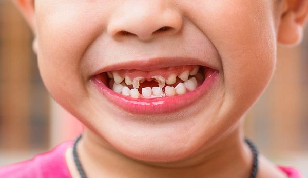 Răng sữa của trẻ bị mòn phải làm sao?