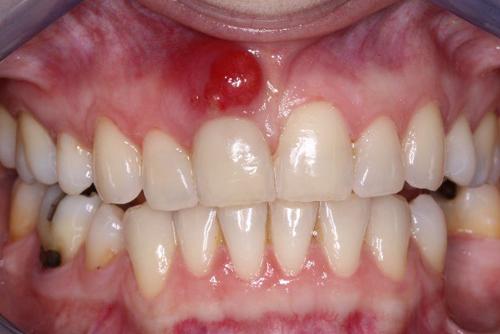 Sưng nướu răng là do đâu? Cách nào chữa trị an toàn? 1