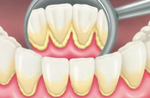 Sưng nướu răng là do đâu? Cách nào chữa trị an toàn? 2