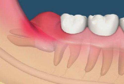 Sưng nướu răng khôn nguyên nhân và cách điều trị 1