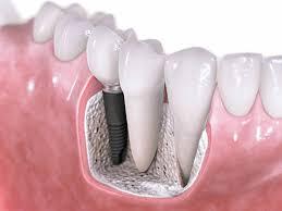 tai-sao-khong-duoc-cay-ghep-implant-khi-trong-implant-2