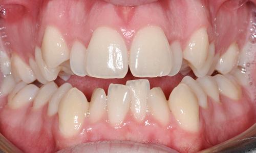Thời gian niềng răng lệch lạc bao lâu?